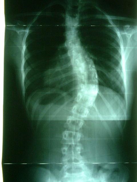 Osteochondrosis del diritto coxofemoral giuntura